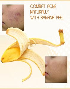 acne-peel-get-rid-of-scars-naturally