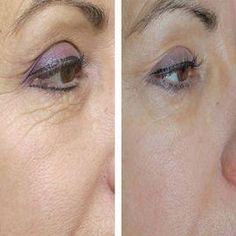 To some, anti aging means surgery; like getting a face lift. But the best looking and effective anti aging practices work from the inside Beauty Tips For Face, Health And Beauty Tips, Beauty Secrets, Beauty Hacks, Under Eye Wrinkles, Face Wrinkles, Prevent Wrinkles, Beauty Care, Beauty Skin