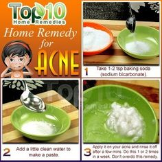 acne home remedy
