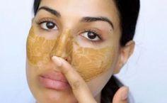Verstopfte Poren und Mitesser auf der Nase? Mit dieser absolut natürlichen Hefe-Maske poppen die ekligen Hautunreinheiten quasi von selbst raus.