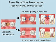 Dentaltown - Benefits of site preservation (bone grafting) after extraction. No bone grafting = bone loss. Bone grafting = maintained bone.