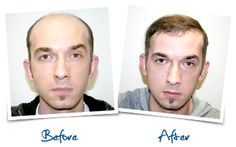 after and before photo..