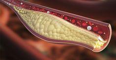 Damarlarda Biriken Kolesterolü Temizleyin