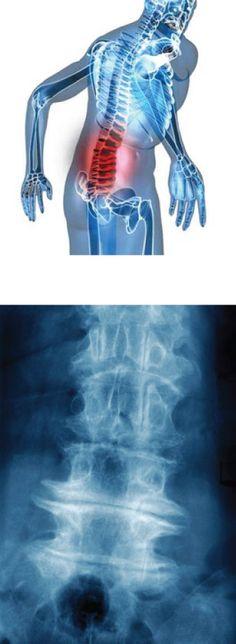 arthrose lombaire
