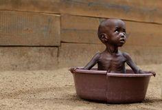 El hambre mata más que el ébola, pero no es considerado un mal importante; ya que de eso no pueden morir los ricos.