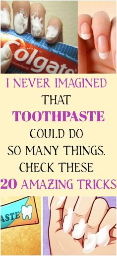 Did you know that toothpaste can help you do so much more than just cleaning your teeth? Continue reading the article below to learn 20 amazing toothpaste tricks! Remedies For Nausea, Natural Remedies For Migraines, Natural Sleep Remedies, Holistic Remedies, Natural Health Remedies, Psoriasis Remedies, Health And Fitness Tips, Health Advice, Health Diet
