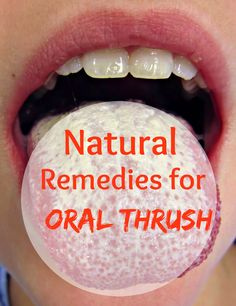 Natural Remedies for Oral Thrush