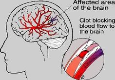 Like all organs, the brain needs the oxygen and nutrients provided by blood to function properly. If the supply of blood is restricted or stopped, brain cells begin to die. This can lead to brain damage and possibly death.