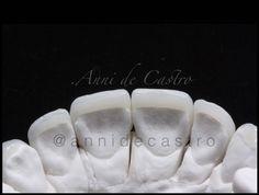 Para os curiosos: Adaptação das lentes de contato dental por trás dos dentes.#amomuitotudoisso #mylife #odonto #odontologia #dentistry #dentistarj #venners #porcelainveneers #lentesdecontatodental #dentista by annidecastro Our General Dentistry Page: http://www.myimagedental.com/services/general-dentistry/ Google My Business: https://plus.google.com/ImageDentalStockton/about Our Yelp Page: bit.ly/1KZUPer Our Facebook Page: https://www.facebook.com/MyImageDental Image Dental 3453 Brookside…