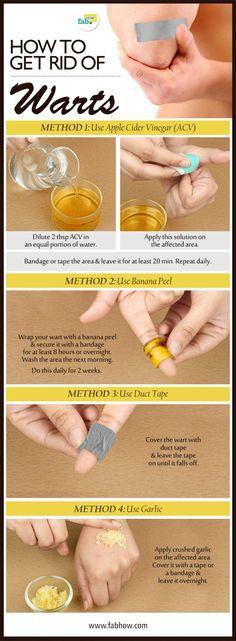 get rid of warts