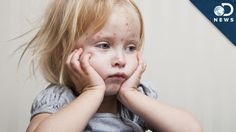 Should You Worry About Measles?  Courtesy: DNews