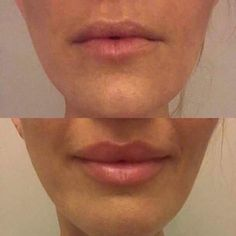We LOVE a before and after photo! For someone who loves big filler lips I definitely also love the look the Lip Plumping Balm also gives! And guess what. its cheap pain free and has a rose tint DM me to order yours Lip Plumping Balm, Lip Balm, Big Lips, Your Lips, Lip Contouring, Lip Fillers, Aging Process, War Paint, Plastic Surgery