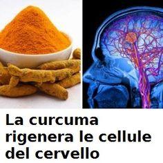 La Curcuma rigenera le Cellule Cerebrali e protegge da Alzheimer, Ictus, Ischemie!