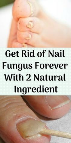 Get Rid Of Nail Fungus Forever With 2 Natural IngredientA fungal nail occurs whe. - Get Rid Of Nail Fungus Forever With 2 Natural IngredientA fungal nail occurs when a fungus attacks - Natural Remedies For Allergies, Natural Headache Remedies, Natural Remedies For Anxiety, Natural Home Remedies, Home Health Care, Health Tips, Cat Health, Health Benefits, Toe Fungus Remedies