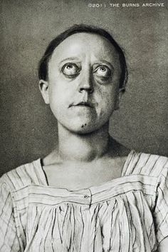 HYPERTHYROIDISM – EXOPHTHALMOS, 1908  Hyperthyroidism - the same disorder that causes goiters - can also cause bulging eyes, as shown in this 1908 photograph. As the eyes protrude, the tend to dry out, sometimes resulting in scarring, infection, and blindness. Hyperthyroidism is also known as Grave's disease.