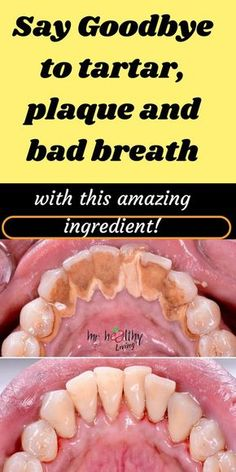 Remove Plaque and Tartar and Whiten your Teeth with this DIY remedies! plaque removal + plaque removal at home + plaque removal at home teeth + whiten teeth + whiten teeth naturally Teeth Health, Dental Health, Oral Health, Healthy Teeth, Dental Care, Gum Health, Plaque Removal At Home, Plaque Removal Teeth, Receding Gums