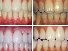 Próbáld ki a kurkumát fogfehérítésre, már az első mosás után 1-2 árnyalattal fehérebbek lesznek a fogaid!