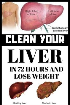 Clean Your Liver In 72 Hours And Lose Weight – Just Keto Recipes Natural Liver Detox, Liver Detox Cleanse, Detox Your Liver, Detox Diet Plan, Natural Health, Detox Cleanses, Healthy Drinks, Healthy Tips, Detox Drinks
