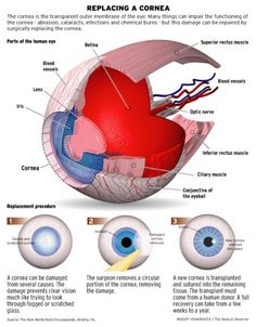 replacing a cornea:  1. type: explaining a kind of eye surgery  2. graphic: eye model viz