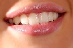 Sağlıklı Gülümseyin