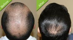 As these days, hair transplant has become one of the best surgeries to recover from hair loss. The reason is the best results of this surgery. People who are interested to know about hair transplant surgery in detail, must click on the link.