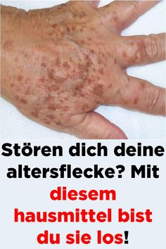 Mit diesem Hausmittel bist du sie los Are you annoying your age spots? You're rid of them with this home remedy Best Weight Loss, Weight Loss Tips, Diy Beauty, Beauty Hacks, Best Dark Spot Corrector, Salt Face Scrub, Bleaching Cream, Skin Care Treatments, Keto Diet For Beginners
