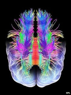 White matter fibres overlaid a model of the human brain in top view. Coloured diffusion spectral imaging (DSI) scan of the bundles of white matter nerve fibres in the brain. Brain Art, Brain Science, Science And Nature, Anatomy Art, Human Anatomy, White Matter, Anatomy And Physiology, Waves, Human Condition