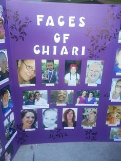 """Tampa Bay, FL """"Faces of Chiari"""""""