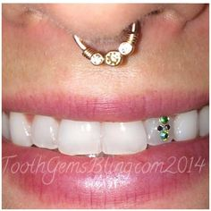Tooth Gems — Braindrops Piercing Studio