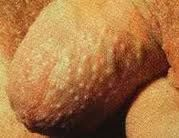 The groin, genitals and armpit are areas less exposed to the sunlight. As such they are rarely affected by usual skin diseases and conditions that usually affect other parts of the skin like arms, the face and legs.