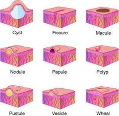 Papules Vesicles Pustules   Differentiating: cyst, fissure, macule, nodule, papule, polyp, pustule ...