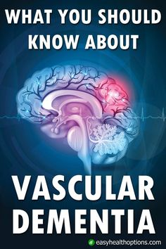 Vascular dementia is the second most common form of dementia after Alzheimer's. Its causes and risk factors are different from AD. Vascular Dementia Stages, Stages Of Dementia, Dementia Care, Alzheimer's And Dementia, Vascular Dementia Symptoms, Online Parenting Classes, Natural Remedies For Uti, Mind Diet, Memory Problems