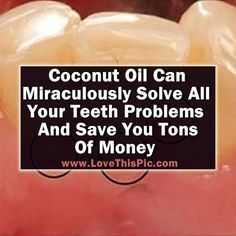 Coconut Oil Can Miraculously Solve All Your Teeth Problems And Save You Tons Of Money beauty diy diy ideas health healthy living remedies remedy life hacks healthy lifestyle beauty tips good to know viral coconut oil: by beth natural inflammation remedies Teeth Health, Healthy Teeth, Oral Health, Dental Health, Dental Care, Health And Wellness, Women's Health, Healthy Food, Health Fitness