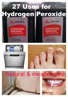 Teeth Nails: 27 Uses for Hydrogen Peroxide. Its natural and inexpensive and can help with all sorts of ailments from toe nail fungus to whitening teeth to stain removal on clothes! Diy Cleaners, Cleaners Homemade, Cleaning Solutions, Cleaning Hacks, Toenail Fungus Remedies, Hydrogen Peroxide Uses, Natural Cleaners, Natural Cleaning Products, Household Products