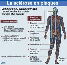 La sclérose en plaque peut être traitée - Bien être, santé, relaxation, massage, stress, shiatsu, Qi Qong; phytothérapie, remède de grand-mère