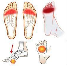 La metatarsalgia Es una afección dolorosa en la planta del pie, provocada por el aplanamiento de la bóveda plantar .El dolor está localizado principalmente entre el 2º, 3º y 4º metatarso
