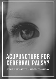 Can acupuncture treat cerebral palsy? Check this out! #AcupunctureWorks #Acupuncturebenefits #tcm #traditionalchinesemedicine