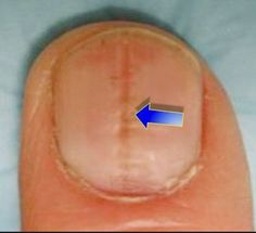 Did you know that your fingernails can provide clues to your overall health? Normal, healthy nails should appear smooth and have consistent coloring, but as you age, you may develop vertical ridges, or your nails may be a bit more brittle. Psoriasis On Hands, What Is Psoriasis, Plaque Psoriasis, Psoriasis Cure, Psoriasis Remedies, Nail Health Signs, Essential Oils For Psoriasis, Bad Nails, Healthy Nails