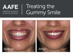 Gummy smiles are successfully treated with Botox when performed by expert injectors. Botox Results, Facial Esthetics, Botox Before And After, Skin Growths, Celebrity Plastic Surgery, Lip Injections, Dermal Fillers, Uneven Skin, Cosmetic Dentistry