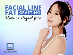 Facial Fat Grafting Surgeons, Facial Fat Grafting Surgery Cost In Korea Angles, Surgery, Clinic, Facial, How To Remove, Fat, Shape, Facial Treatment, Facial Care