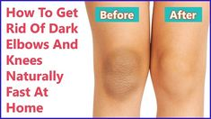Accumulation of dead skin cells, friction, extensive exposure to sun, or a hormonal imbalance can become the cause of dark knees and elbows. These parts of our body don't contain any oil glands and it's important to protect them from . Dark Elbows, Colgate Toothpaste, Toenail Fungus Treatment, Dead Skin, How To Get Rid, Teeth Whitening, Skin Care Tips, Pole Dancing, Cream