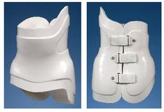 Back Braces are one of our specialties.  From young children to adults. http://coopc.org/frequently-asked-questions/orthotics/