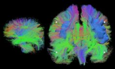 """Wiring the brain. This picture shows detailed maps of brain wiring in a sleeping newborn baby (left) and an adult in their seventies (right) visualised using MRI. The coloured lines represent the wires of the brain that form the basis of the human """"neural network"""". These images came from studies designed to assess the effect of premature birth on the development of brain connections and to identify areas of age related damage (shown as blue solids) in older adults."""