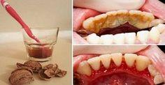 Коричневый или желтый налет на зубах можно удалить дома! Зубной камень — распространенная проблема, и современная стоматология предлагает множество способов его устранения. Но существует метод, который работает не хуже, при этом экономя твои средства!