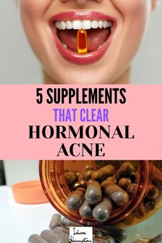 Is hormonal acne driving you crazy? I'm going to share five of my favorite superstar supplements for tackling stubborn hormonal acne. Acne Skin, Acne Prone Skin, Healing Clay, Acne Free, Skin Care, Beauty Skin, Beauty Care, Beauty Tips, Superstar