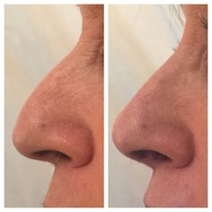 60 years woman correction by 0,6ml of belotero intense lidocaine. 5 minutes work