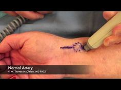 Live Surgery: Radial Artery ArterioVenous Fistula Repair Following Cardiac Catheterization - YouTube