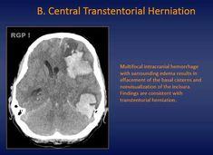 2020 Other | Images: Sphenopalatine Foramen Radiology ... |Sphenopalatine Foramen Radiology