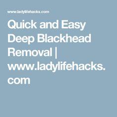 Quick and Easy Deep Blackhead Removal   www.ladylifehacks.com