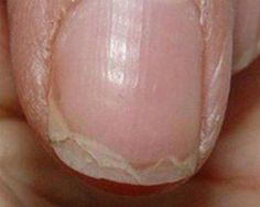 This is what peeling nails look like. ~ loodie loodie loodie: Nail Hardeners: Are formaldehyde based hardeners right for you? Doctors at the International Council for Truth in Medicine are revealing the truth about diabetes that has been suppressed for ov Health Remedies, Home Remedies, Natural Remedies, Pale Nails, Beauty Nails, Hair Beauty, Peeling Nails, Split Nails, Ongles Forts